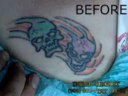 tattoo vanish near me tattoo removal inked regret