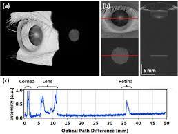osa retinal anterior segment and full eye imaging using