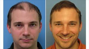 hair plugs for men you can see the smile of this man after hair transplant that is