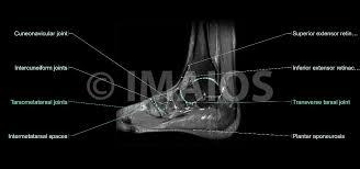 Sagittal Brain Mri Anatomy Anatomy Of The Foot And Ankle Mri