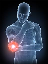Psoriatic Arthritis And Hair Loss Immunology Focus Areas U2013 Immunology U2013 Therapeutic Focus Areas