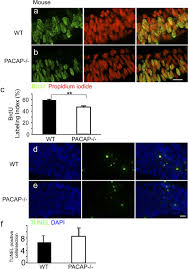 pro and anti mitogenic actions of pituitary adenylate cyclase