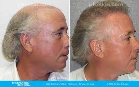 hair plugs for men phoenix hair transplant phoenix skin medical surgical group