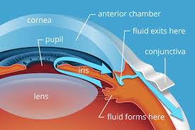 The Blind Spot In The Eye Is Due To 3 Main Causes Of Glaucoma