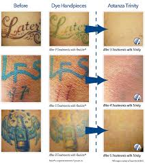 laser tattoo removal philippines 1000 geometric tattoos ideas