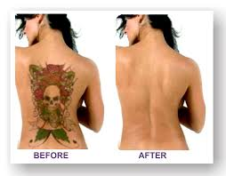 tattoo removal clinic in delhi u2013 cosmo tree clinic u2013 cosmotree