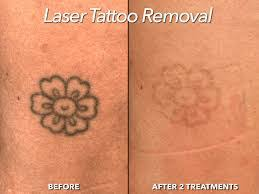 tattoo removal houston get a new look today