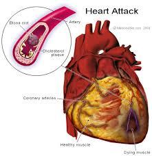 Diagram Heart Anatomy Heart Attack Anatomy Heart Attack How The Blood Clot Blo U2026 Flickr