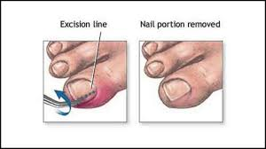 ingrown toenail treatment podiatrist in palm harbor and tarpon