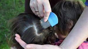 vast majority of states overrun by treatment resistant head lice