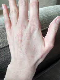 itchy bumps on hands that spread itchy red bumps all over my hands what s causing them