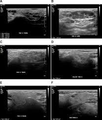 salivary gland ultrasound abnormalities in primary sjögren u0027s