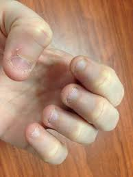 how i quit biting my nails u2013 breaking a 27 year habit the rockin