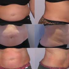 lipo light laser treatment reviews lipo light south bay 62 photos 51 reviews weight loss centers