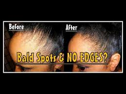 what hairstyles can be done with a bald spot in the top of head rocking short natural hair with thin edges try this instant fix