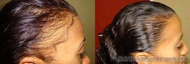 hair transplant for black women female hair restoration procedure before and after pictures with