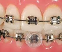 nickel free braces brackets orthodontic products