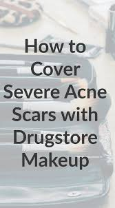 how i cover scars u0026 blemishes with drugstore makeup u2014 allie casazza