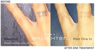 tattoo removal laser for all skin types the zannis center