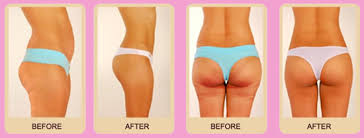 lipo light laser treatment reviews nutra luxe lipo reduction anti cellulite body shaping massager