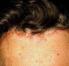 light treatment for scalp psoriasis treating scalp psoriasis selected effective remedies psoriasis