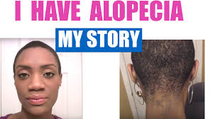 hair styles for women with center bald spots alopecia areata my hair loss journey with pictures 2013 youtube