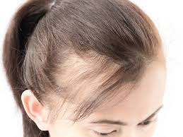 womans hair thinning on sides toronto hair transplant clinic on how your genes affect your hair loss