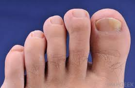 what are the different types of fingernail problems
