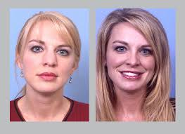 best hair for wide nose nose deformities dr william e silver atlanta ga