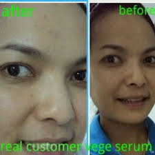 Serum Vege vege lightening serum herbal herbal n klinik