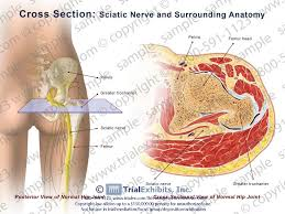 Neck Cross Sectional Anatomy Litigation Support Medical Legal Illustration Animation Trial