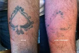 common tattoo removal concerns tattoo removal sherman oaks