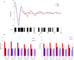 frontiers acoustic enhancement of sleep slow oscillations and