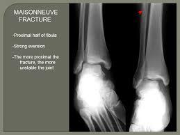 Subtalar Joint Fracture Ankle Fractures Justin Mullner U2013 8 27 Ppt Video Online Download