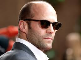 male pattern baldness hairstyles confronting your crown male pattern baldness wbur news