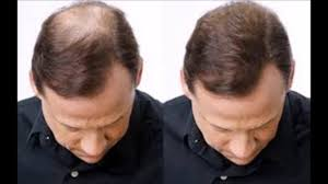 Hair Loss Vitamin Deficiency Iron Deficiency Hair Loss Before And After Youtube