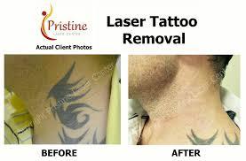 picosure tattoo removal orlando florida picosure laser