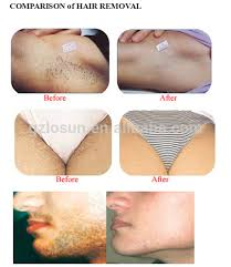 high quality 3 in1 elight opt yag laser hair and tattoo removal