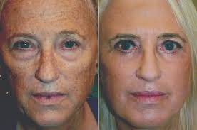 you don t to be stuck with sun damage adam scheiner md