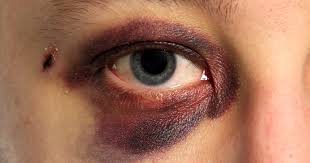 what causes eyes to be sensitive to light 7 most common eye injuries and how to treat them