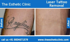 laser tattoo removal permanent tattoo removal treatment before