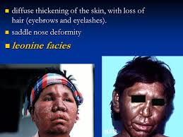 leprosy leprosy i leprosy i introduction introduction