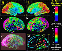 Brain Mapping Paul Thompson U0027s Research Publications