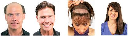 hair weaves for balding men home hair replacement manly men womens hair replacement