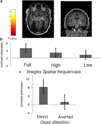 Define Cortical Blindness Amygdala Activation For Eye Contact Despite Complete Cortical