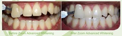 teeth whitening skegness mint dental care lincolnshire