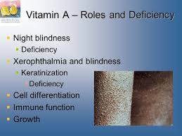 Night Blindness Deficiency Nutrition Concepts U0026 Controversies 12e Sizer Whitney Ppt