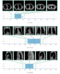 2d image classification for 3d anatomy localization employing