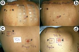 nickel allergy testing fig 1 patch test during a and immediately after b removal