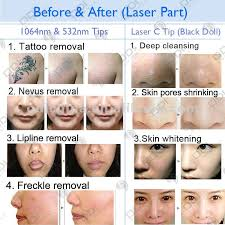 ce certificate laser q switch yag laser pigmentation removal